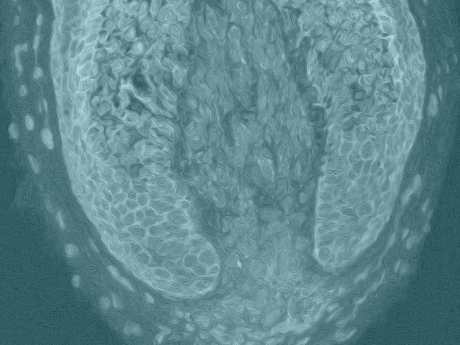 "Stem Cell 3D Printed ""Hair Farms"""